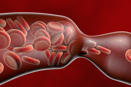 Vasoconstriction, thromboembol in blood vessel. Clot formation. Red blood cells and white blood cells, 3D illustration