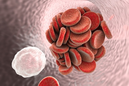 thrombus: Thromboembol in blood vessel. Clot formation. Red blood cells and white blood cells, 3D illustration