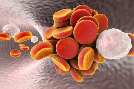 Thromboembol in blood vessel. Clot formation. Red blood cells and white blood cells, 3D illustration