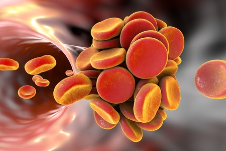 Thromboembol in blood vessel. Clot formation, 3D illustration