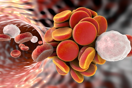 leukocyte: Thromboembol in blood vessel. Clot formation. Red blood cells and white blood cells, 3D illustration