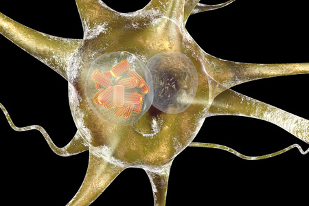 wścieklizna: Rabies viruses, orange in neuron. Intracytoplasmic inclusion called Negri body used in diagnostics, 3D illustration