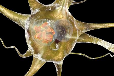 wścieklizna: Rabies viruses, orange in neuron. Intracytoplasmic inclusion called Negri body used in diagnostics, 3D illustration