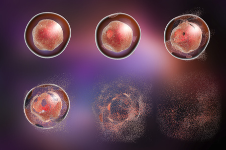 sustancias toxicas: Lisis celular. La destrucción de una célula. Ilustración 3D que se puede utilizar para ilustrar efecto de los fármacos, microbios, nanopartículas, sustancias tóxicas o apoptosis
