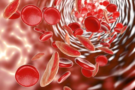겸상 적혈구 빈혈, 정상 및 deformated 초승달 모양의 적혈구 세포와 혈관을 보여주는 3D 그림