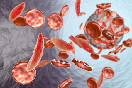disorder: Sickle cell anemia, 3D illustration showing blood vessel with normal and deformated crescent-like red blood cells