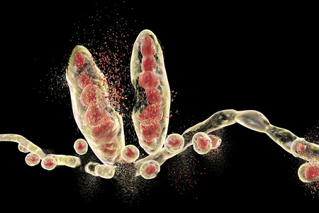 Destruction of fungus Trichophyton mentagrophytes which causes athletes foot Tinea pedis and scalp ringworm Tinea capitus. 3D illustration. Concept for antifungal treatment