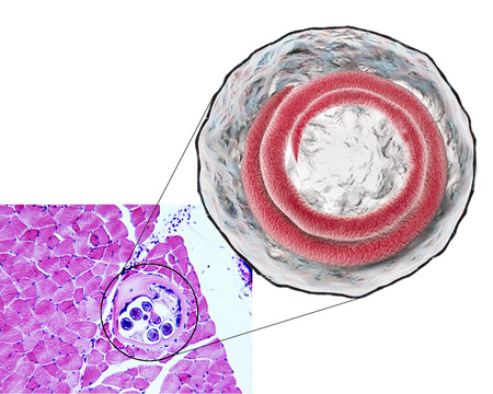 transverse: 3D illustration and micrograph, transverse section, of cyst in muscle containing helminth Trichinella spiralis, nematode larval cyst in muscle tissue, transmitted by ingestion of undercooked meat