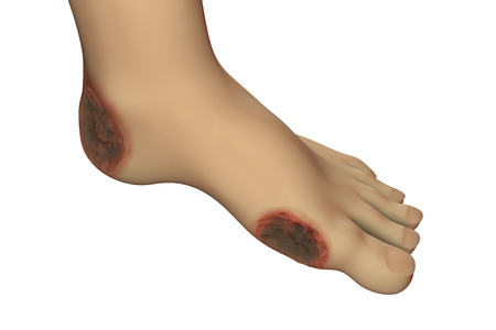 Diabetic foot ulcer, 3D illustration showing common location of diabetic ulcer lesions Reklamní fotografie