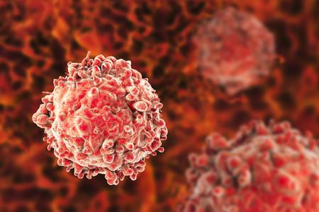 leukocyte: Leukaemia white blood cells, 3D illustration. Cancer cells