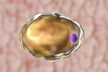 lipid a: Fat cell, adipose cell, adipocyte. 3D illustration showing presence of big lipid droplet yellow inside the cell. The violet structure is nucleus