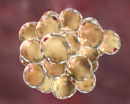 lipid a: Fat cells, adiposes cell, adipocytes. 3D illustration showing presence of big lipid droplet yellow inside the cell. The red structure is nucleus