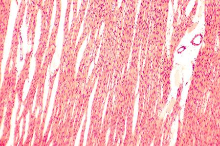 myocardium: Heart muscle, light micrograph. Striated cardiac muscle cells myocytes. Light microscopy, hematoxilin and eosin stain, magnification 100x Stock Photo
