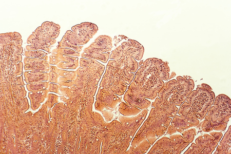 villi: Villi of small intestine, light micrograph, magnification 100x
