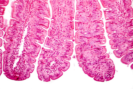 Villi of small intestine, light micrograph, magnification 100x