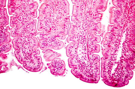 photomicrograph: Villi of small intestine, light micrograph, magnification 100x