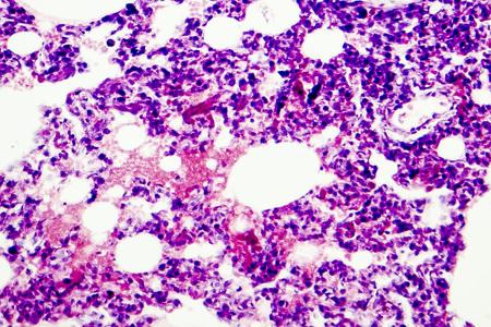 폐 조직을 보여주는 현미경 사진. 폐의 빛 현미경 사진, 배율 100 배 스톡 콘텐츠