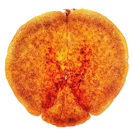 medula espinal: la médula espinal, la sección transversal. Luz micrografía que muestra la blanca y la materia gris con dorsal y ventral cuernos