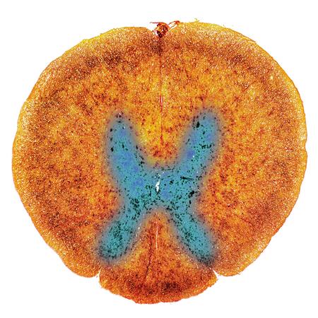 medula espinal: la médula espinal, la sección transversal. Luz micrografía que muestra el color amarillo, blanco y el asunto de color azul gris con dorsales y ventrales cuernos. Los colores se han mejorado para una mejor visualización Foto de archivo