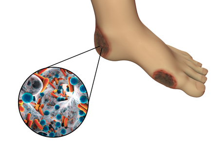 skin injury: Diabetic foot infection with close-up view of bacteria isolated on white background, 3D illustration Stock Photo