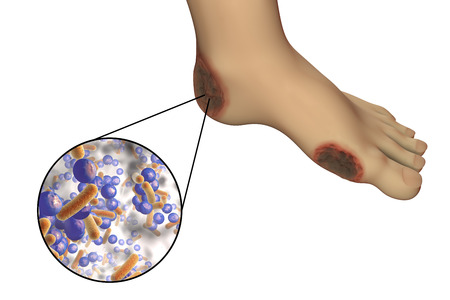 Diabetic foot infection with close-up view of bacteria isolated on white background, 3D illustration Stock Photo