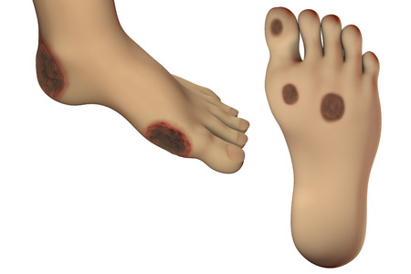 Diabetic foot ulcer, 3D illustration showing common location of diabetic ulcer lesions Stock Photo