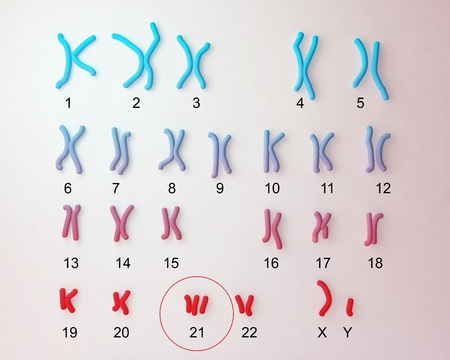 Down-syndrome karyotype, male labeled. Trisomy 21 3D illustration
