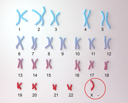 Turner s-syndrome karyotype, labeled. X0 karyotype. 3D illustration