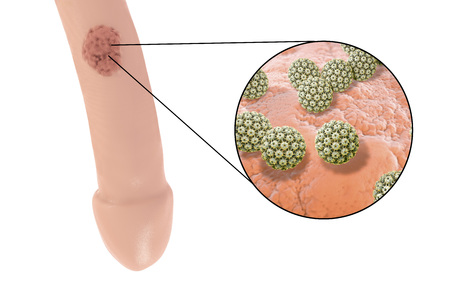 Common locations of genital warts, Human papillomavirus HPV lesions in men, and close-up view of HPV. 3D illustration
