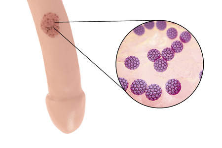lesions: Common locations of genital warts, Human papillomavirus HPV lesions in men, and close-up view of HPV. 3D illustration