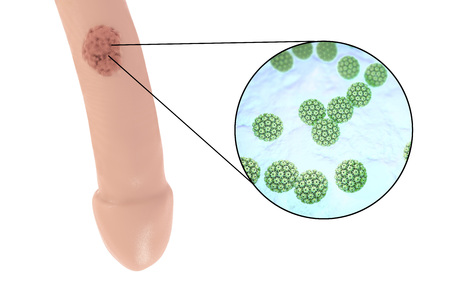 mucous: Common locations of genital warts, Human papillomavirus HPV lesions in men, and close-up view of HPV. 3D illustration