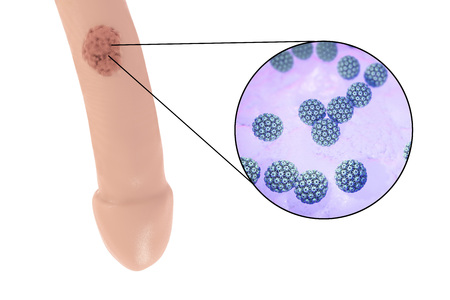 transmitted: Common locations of genital warts, Human papillomavirus HPV lesions in men, and close-up view of HPV. 3D illustration