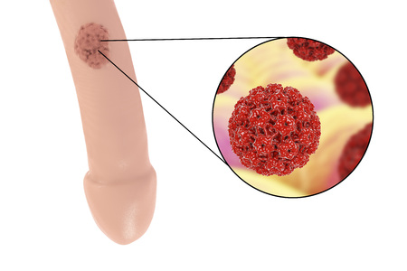pene: Lugares comunes de las verrugas genitales, Virus del papiloma humano, lesiones del VPH en los hombres, y vista cercana del VPH. Ilustración 3D