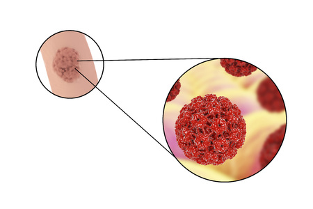 hpv: Human papillomavirus HPV lesions in men, genital warts, and close-up view of HPV. 3D illustration