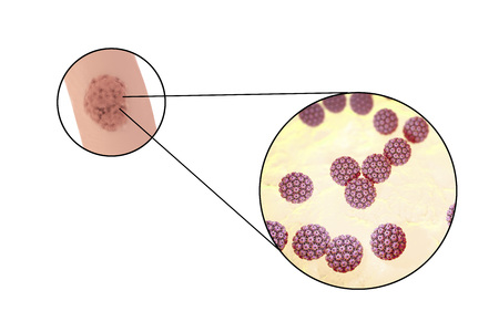 mucous: Human papillomavirus HPV lesions in men, genital warts, and close-up view of HPV. 3D illustration