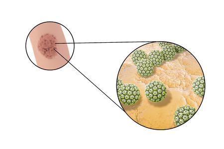 Human papillomavirus HPV lesions in men, genital warts, and close-up view of HPV. 3D illustration Stock Illustration - 72535700