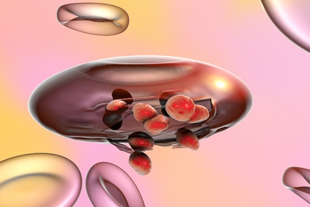 infectious disease: Malaria. Release of malaria parasites from red blood cell. Merozoites, 3D illustration Stock Photo