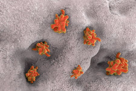 dysentery: Entamoeba histolytica protozoan invading intestine. Parasite which causes amoebic dysentery and ulcers. 3D illustration
