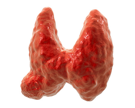 endocrinology: Thyroid cancer. 3D illustration showing thyroid gland with tumor isolated on white background