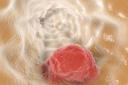 esophagus: Esophageal cancer, 3D illustration showing tumor on the wall of esophagus