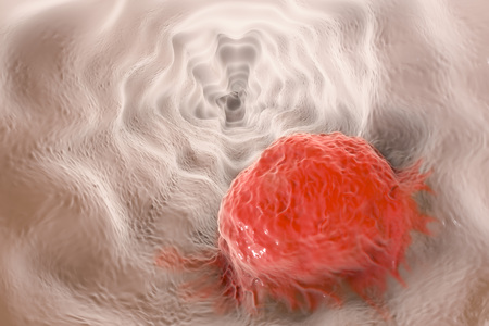 esophageal: Esophageal cancer, 3D illustration showing tumor on the wall of esophagus