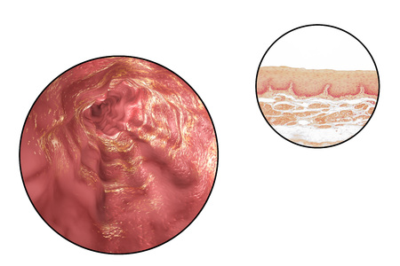 esophageal: Human esophagous, 3D illustration and light micrograph of esophageal non-keratinized stratified squamous epithelium
