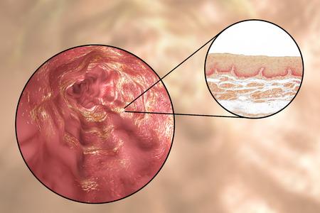 squamous: Human esophagous, 3D illustration and light micrograph of esophageal non-keratinized stratified squamous epithelium