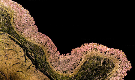 Cross section of a normal stomach showing pyloric mucosa. The photo shows deep gastric pits which reach half of mucosa depth. Colors are enhanced for better visualisation