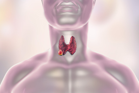 endocrinology: Thyroid cancer. 3D illustration showing thyroid gland with tumor inside human body Stock Photo