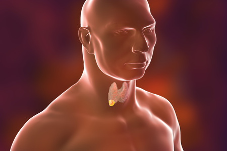 Thyroid cancer. 3D illustration showing thyroid gland with tumor inside human body Stock Photo