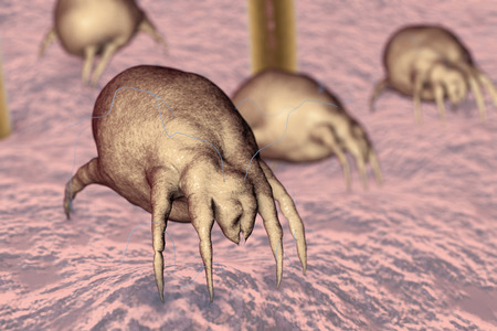 Dust mites Dermatophagoides on human skin with hairs, parasites which live in dust and furniture and whose excrements cause allergic reaction and asthma, 3D illustration