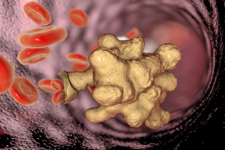 dysentery: Entamoeba histolytica protozoan in blood. Parasite which causes amoebic dysentery and ulcers, 3D illustration