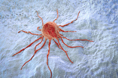 Krebszelle, Tumorzelle, Großaufnahme, 3D-Darstellung