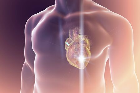 Heart attack, conceptual image for heart diseases. 3D illustration